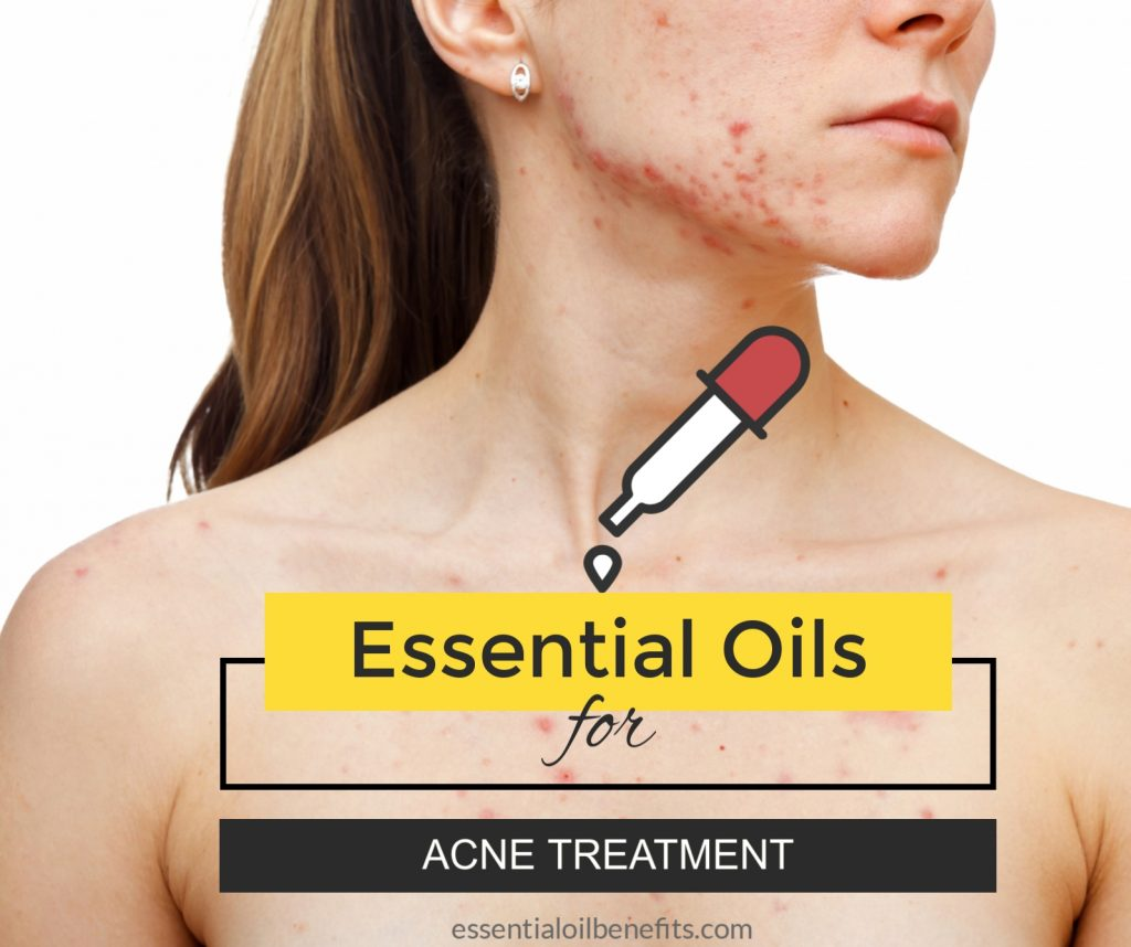Best Essential Oil Recipes For Acne Treatment Essential Oil Benefits