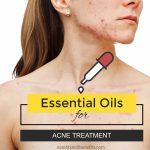 Essential oils for acne treatment