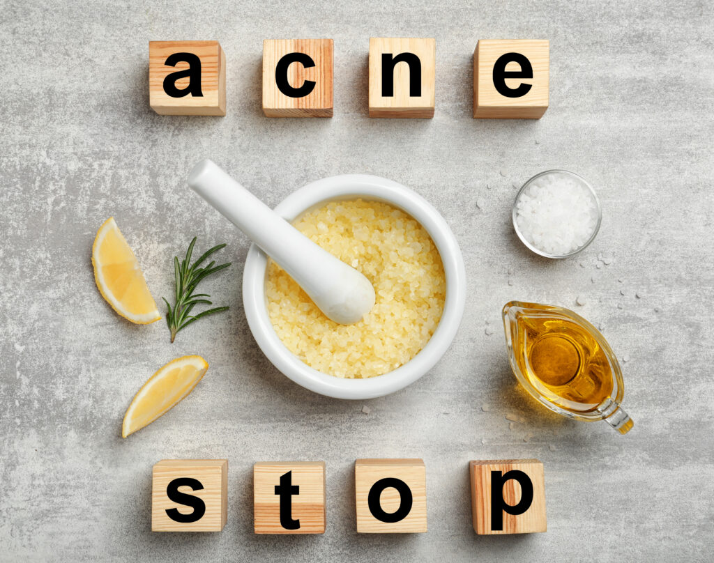 Best Essential Oils & Recipes For Acne Treatment Essential Oil Benefits