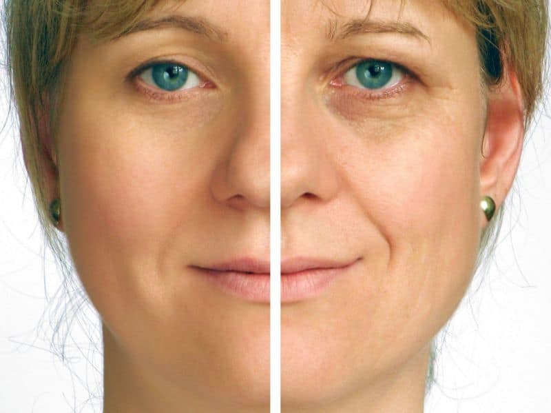 How To Prevent, Reduce, Remove Neck Wrinkles And Sagging Using Essential Oils? Essential Oil Benefits