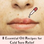 8 Essential Oil Recipes For Cold Sore Relief