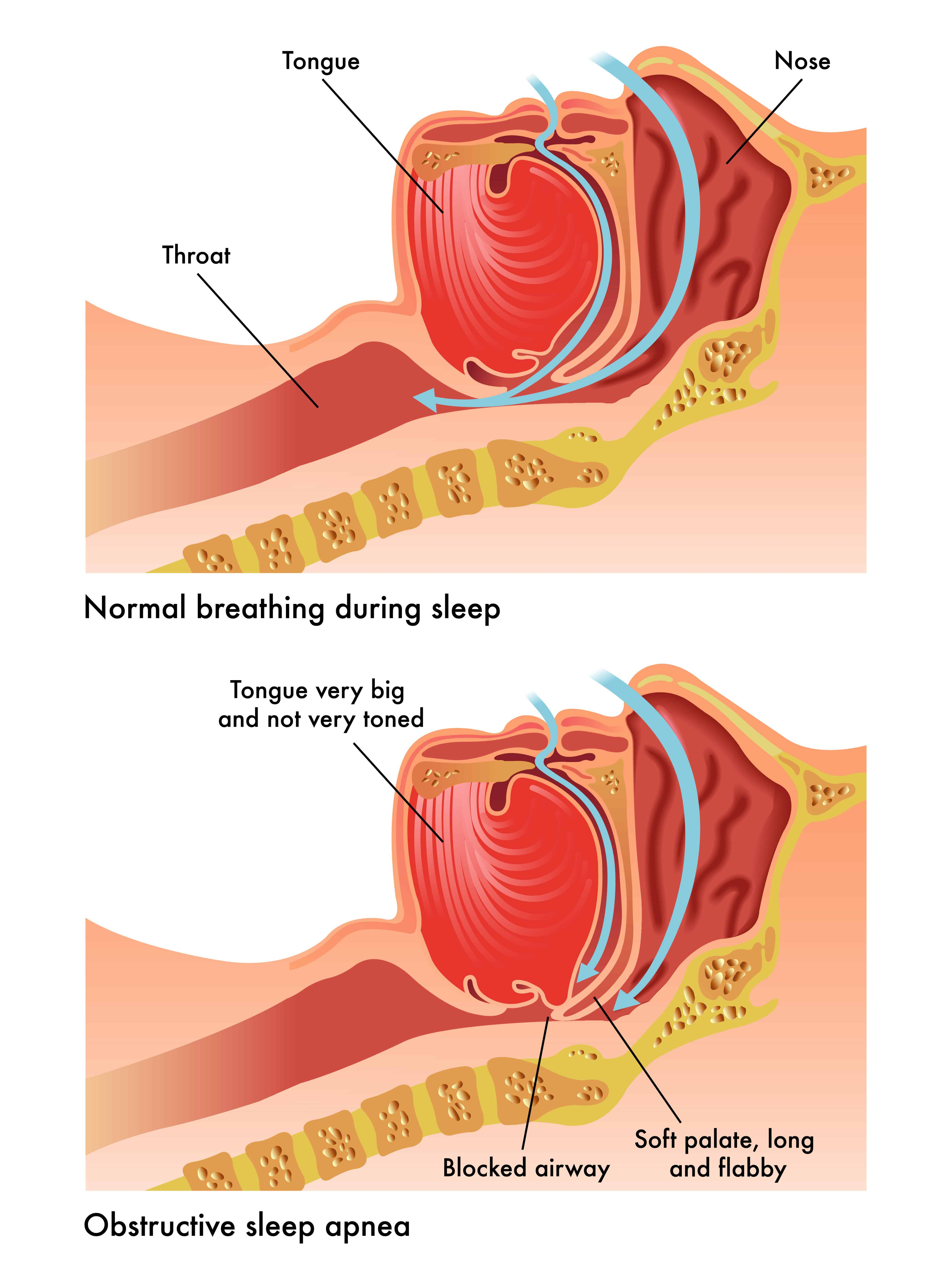 Best Essential Oils To Use For The Treatment Of Sleep Apnea Essential Oil Benefits