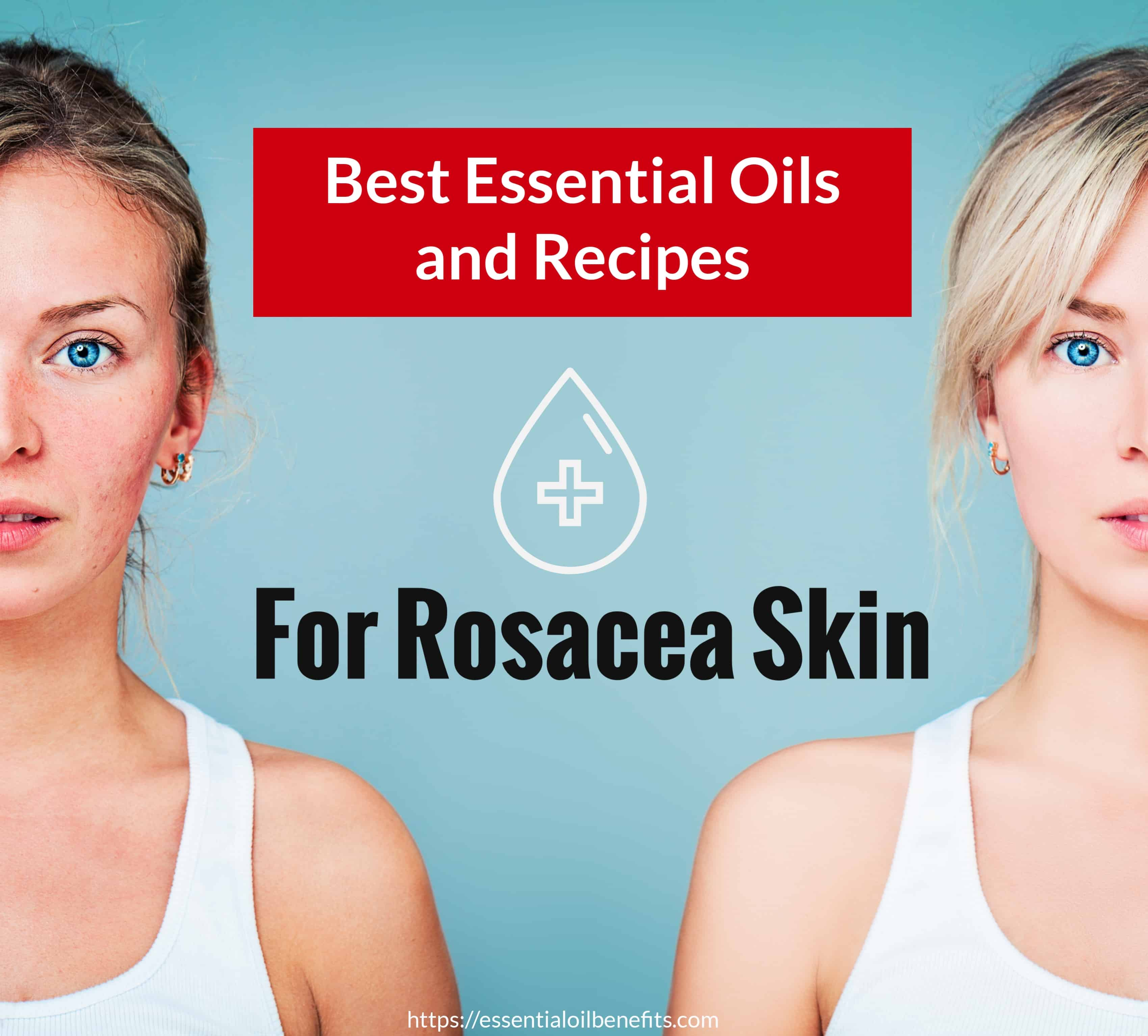 Best Essential Oil And Recipes For Rosacea Skin   Essential