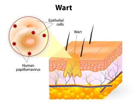 How To Use Essential Oils For The Best Possible Elimination Of Warts? Essential Oil Benefits