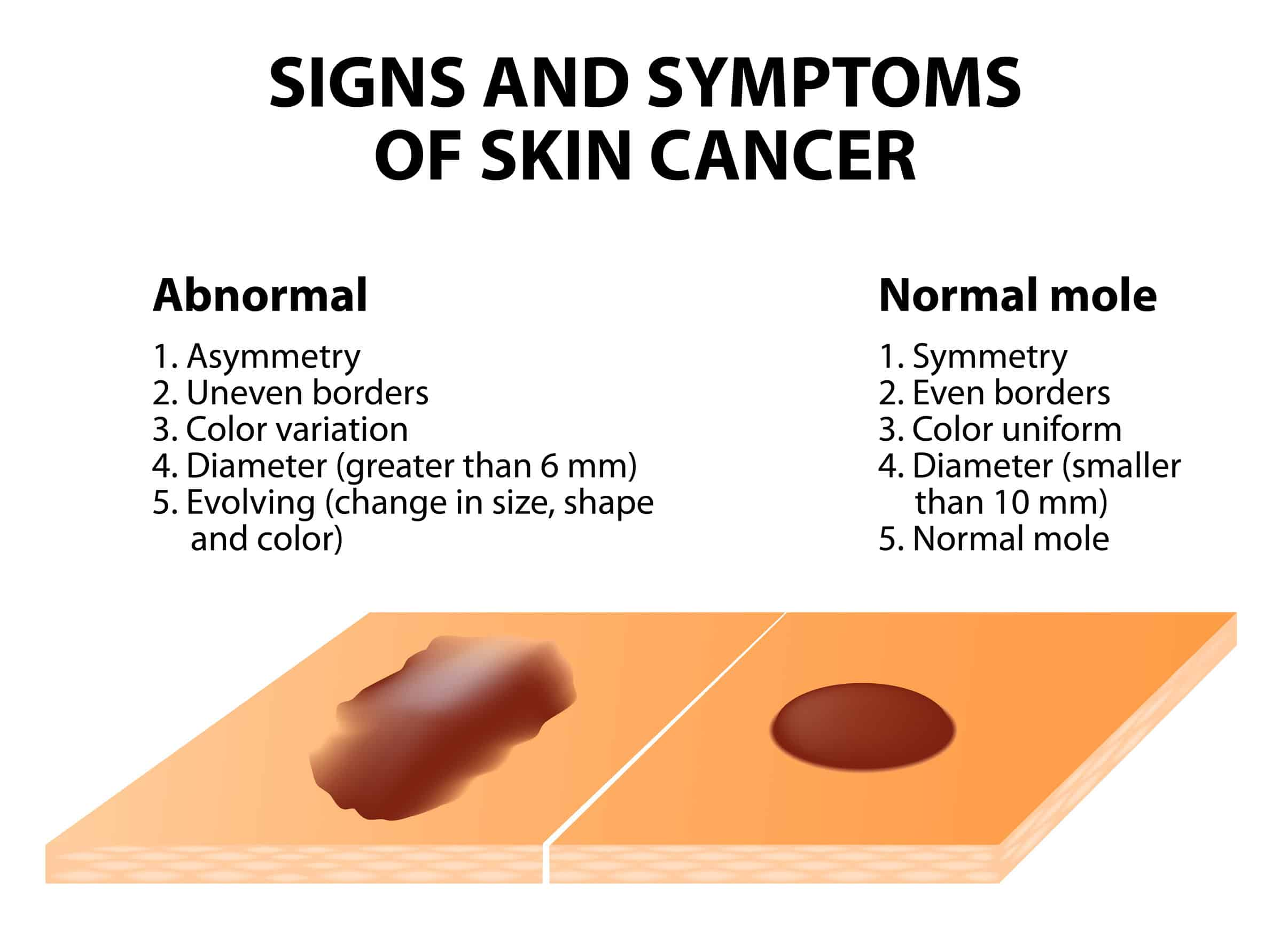 What Are The Best Essential Oils And Recipes For Skin Cancer? Essential Oil Benefits