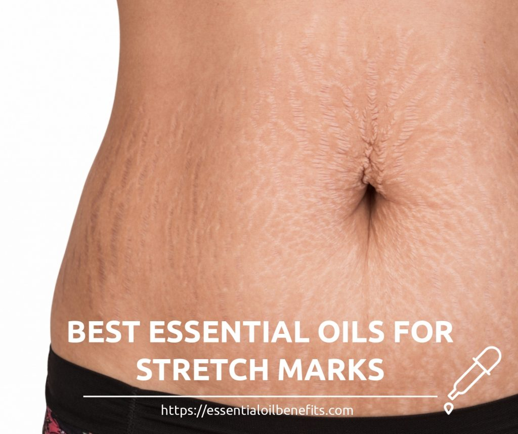 How To Get Rid Of Stretch Marks Using Essential Oils