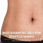 essential oils for stretch marks