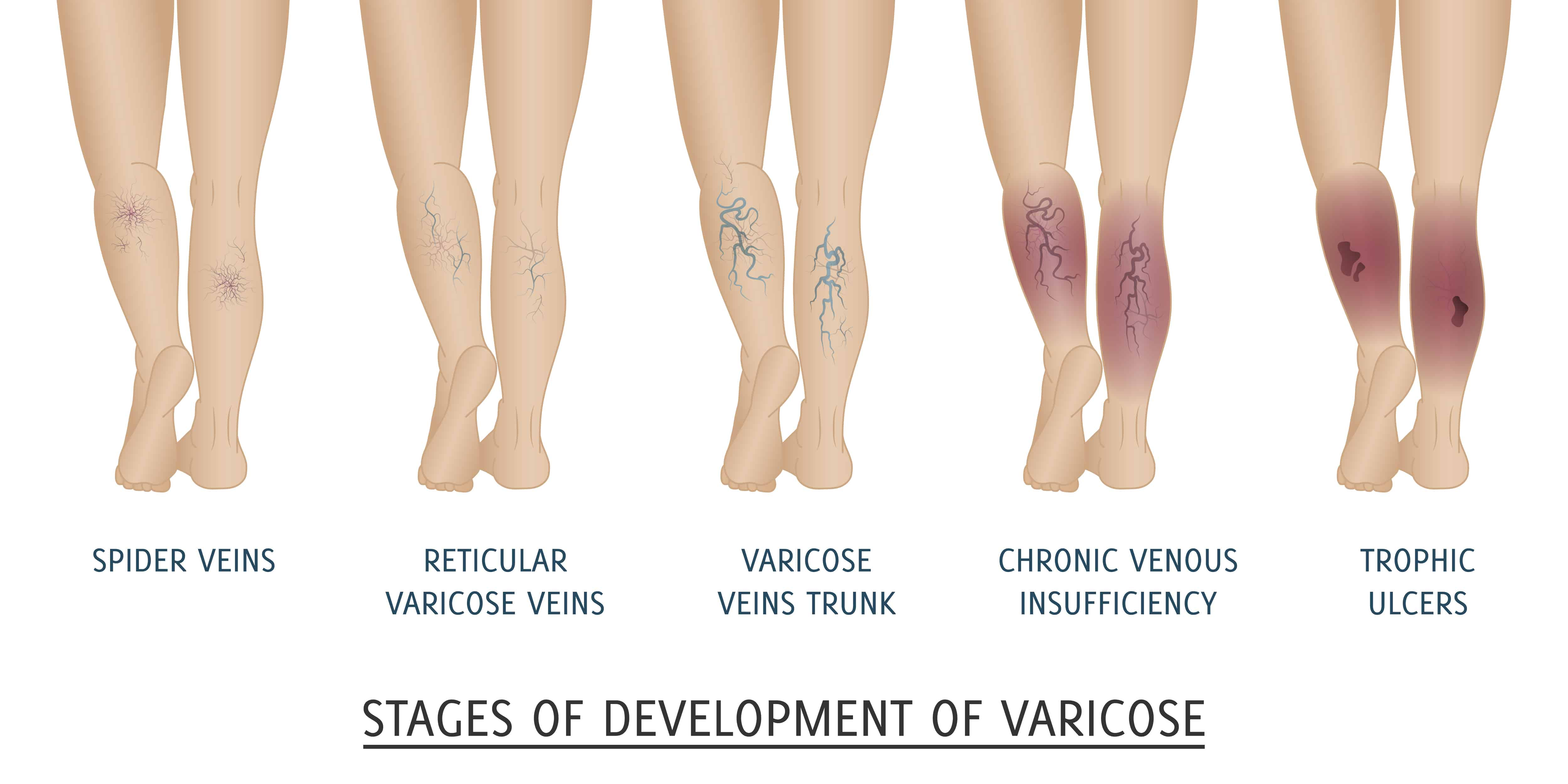 Best Essential Oils and Recipes For Varicose Veins Treatment Essential Oil Benefits