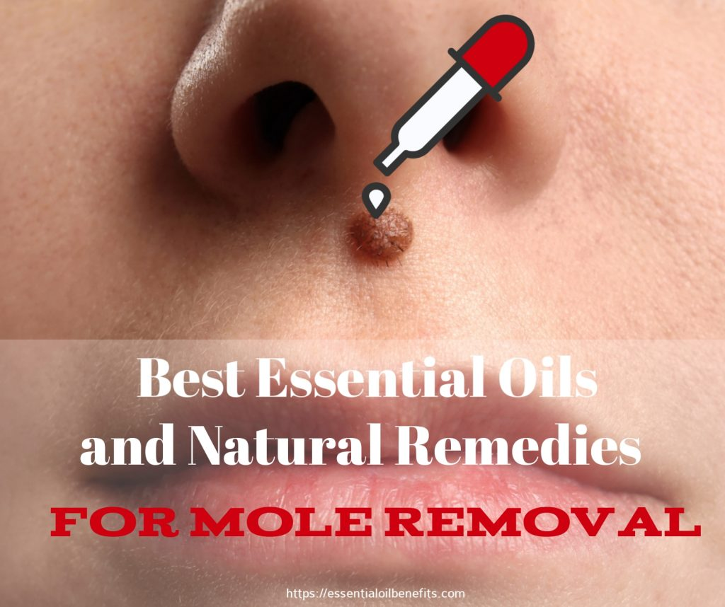 Top 4 Essential Oils and 5 Natural Remedies for Mole Removal Essential Oil Benefits