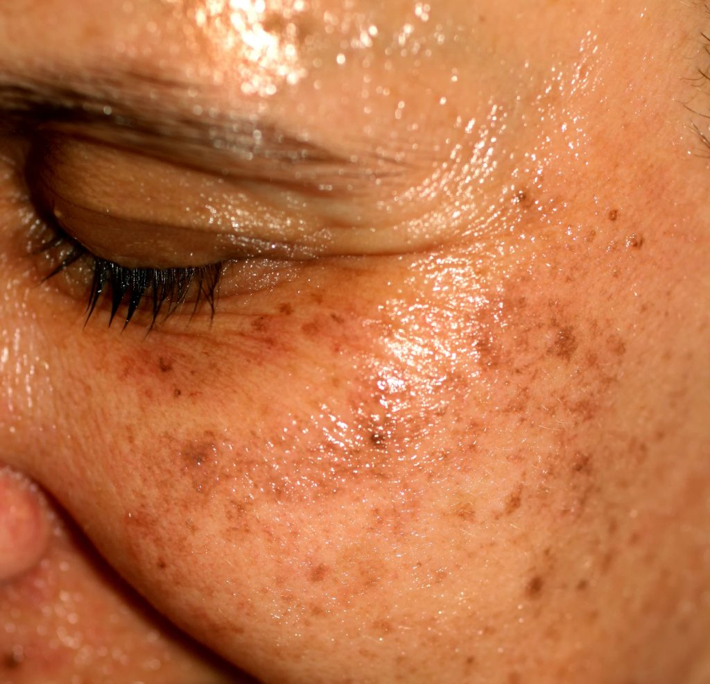 21 Best Essential Oils for Age Spots on Face and Hands Essential Oil Benefits