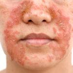 Seborrheic Dermatitis face