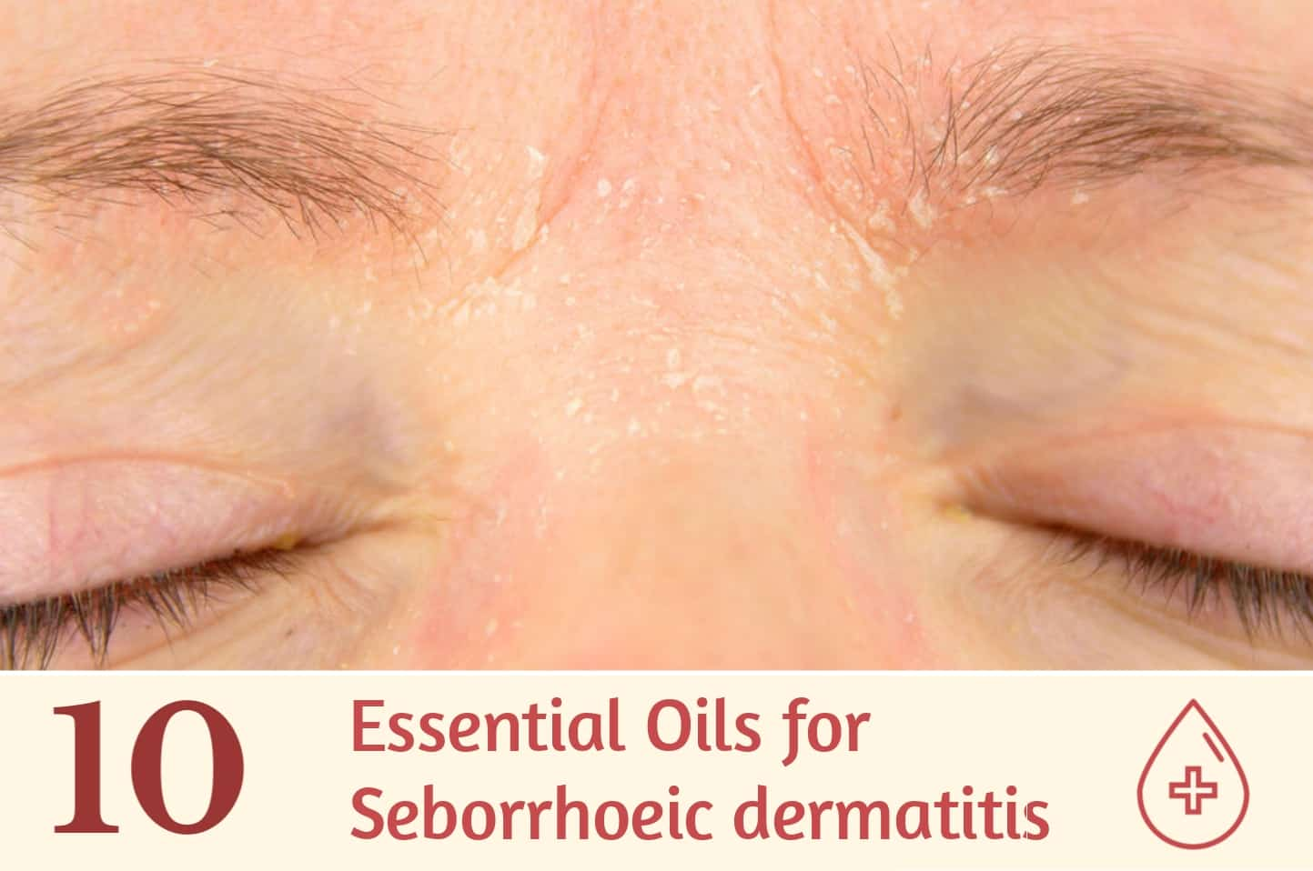 10 Essential Oils for Seborrheic Dermatitis | Essential Oil
