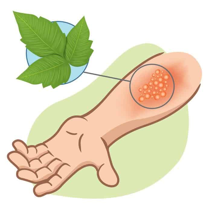 How To Use Essential Oils To Get Rid Of Poison Ivy: 7 Essential Oils & Recipes and 5 Home Remedies Essential Oil Benefits