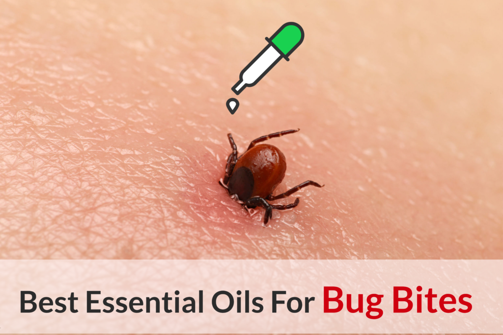 What Bit Me: The Ultimate Guide About Essential Oils For Bug Bites Essential Oil Benefits