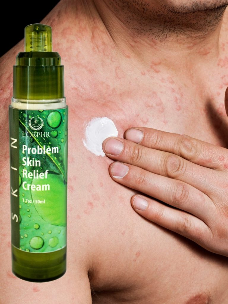 Skin Rashes? Let Essential Oils Handle Those Nasty Eruptions! Essential Oil Benefits