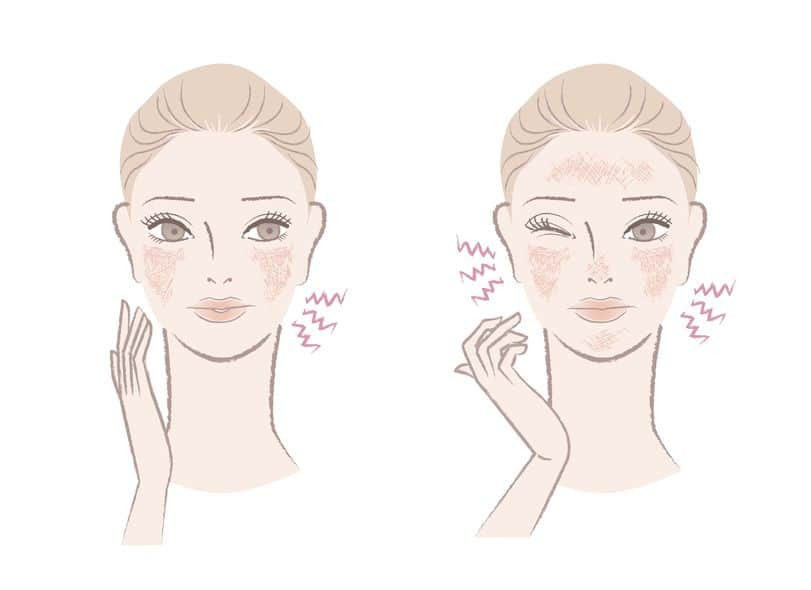 Want To Know How To Tackle Your Sensitive Skin? Read To Develop The Perfect Skincare Routine! Essential Oil Benefits
