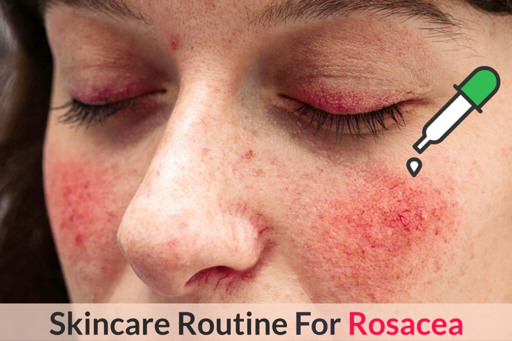 Want To Keep Your Rosacea Redness, Dryness And Inflammation Under Control? Try This Skincare Routine! Essential Oil Benefits