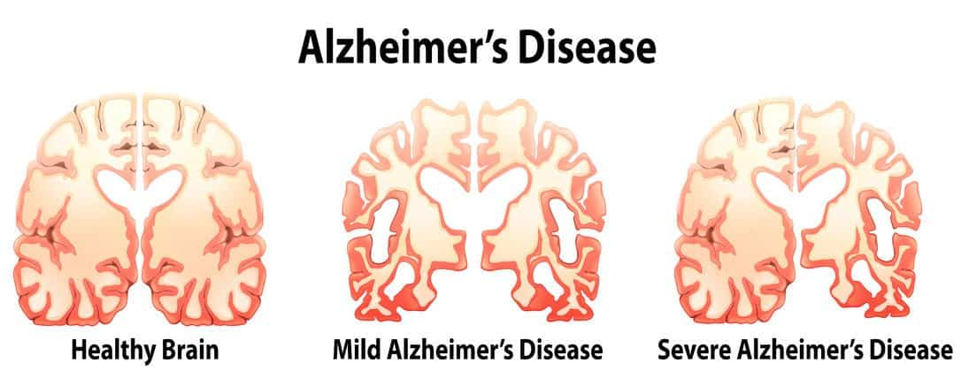 alzheimer desease Alzheimer's disease (ad), the most common cause of dementia, is a progressive brain disorder learn about the causes, signs and research being done about ad.