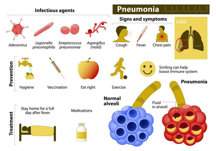 Essential Oils For Pneumonia: For When You Really Need A Sigh Of Relief Essential Oil Benefits