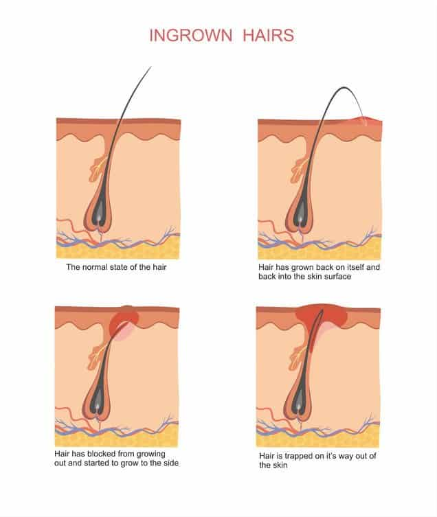How Do Ingrown Hairs Form Erkalnathandedecker
