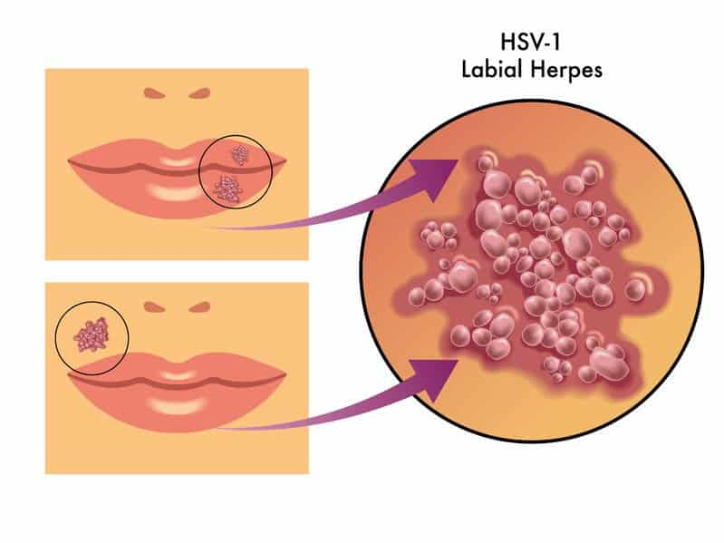 HSV1 - labial herpes