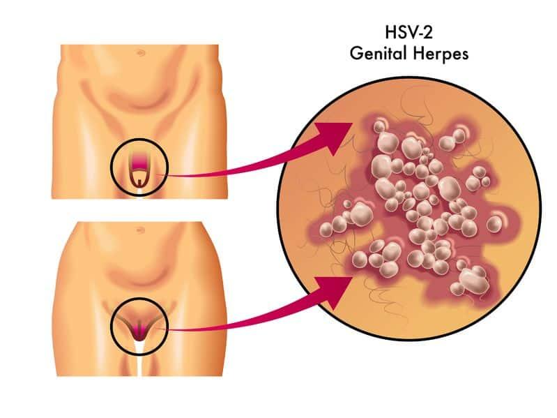 HSV2 - genital herpes