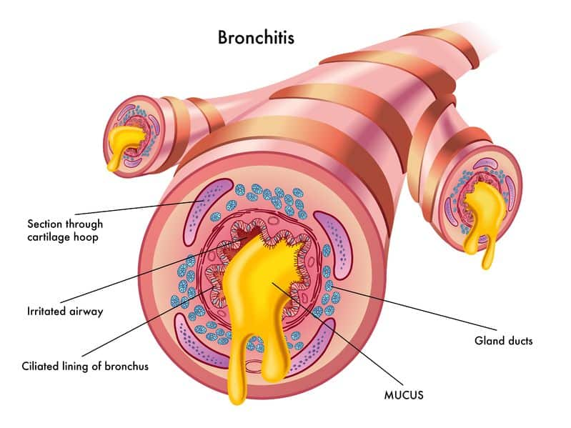 Essential Oils For Bronchitis: Dealing With Clogged Up Vents And Inflamed Chimneys Essential Oil Benefits