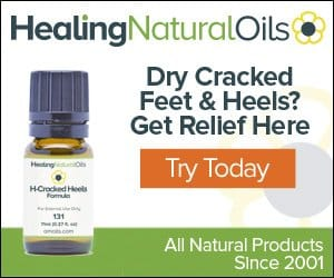Essential Oils For Cracked Heels: When Achilles Got Nothing On You Essential Oil Benefits