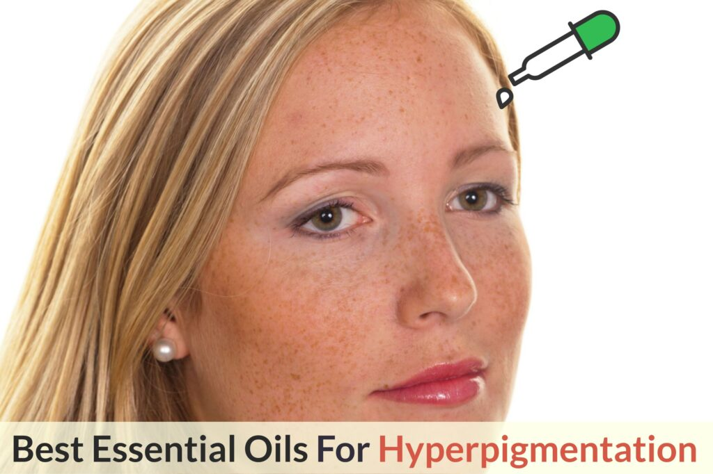 What Are The Best Essential Oils And Recipes For Hyperpigmentation: A Ray Of Light From Mother Nature To Lighten Your Skin! Essential Oil Benefits