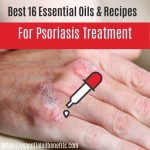 best essential oils for psoriasis