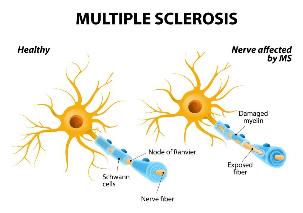 Essential Oils For Multiple Sclerosis: Beating MS One Step At A Time Essential Oil Benefits