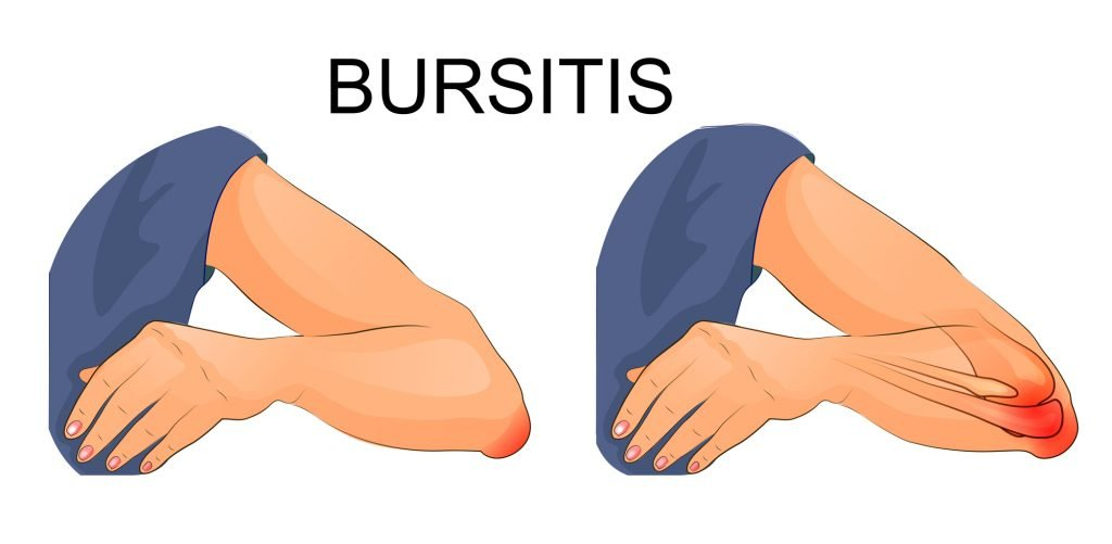 Best Essential Oils And Home Remedies To Stop Bursitis From Bringing Pain Into Your Life! Essential Oil Benefits