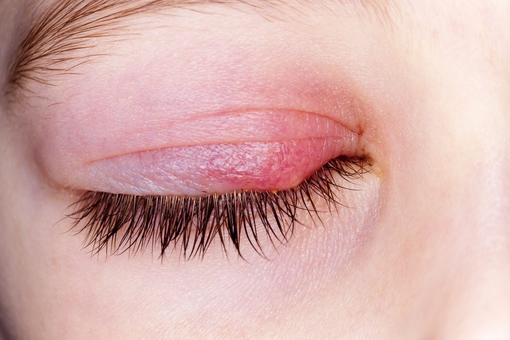 Treating Eyelid Dermatitis With Essential Oils Essential Oil Benefits
