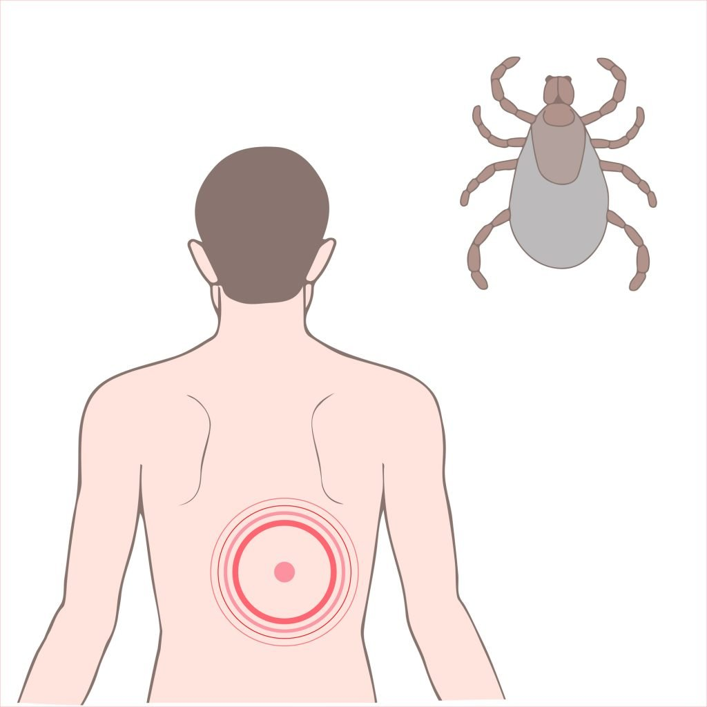 Essential Oils For Lyme Disease: The Tick Bite That Really Sticks With You Essential Oil Benefits