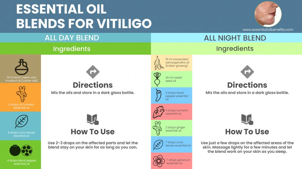 Essential Oils For Vitiligo: When The Natural Skin Pigment Calls It