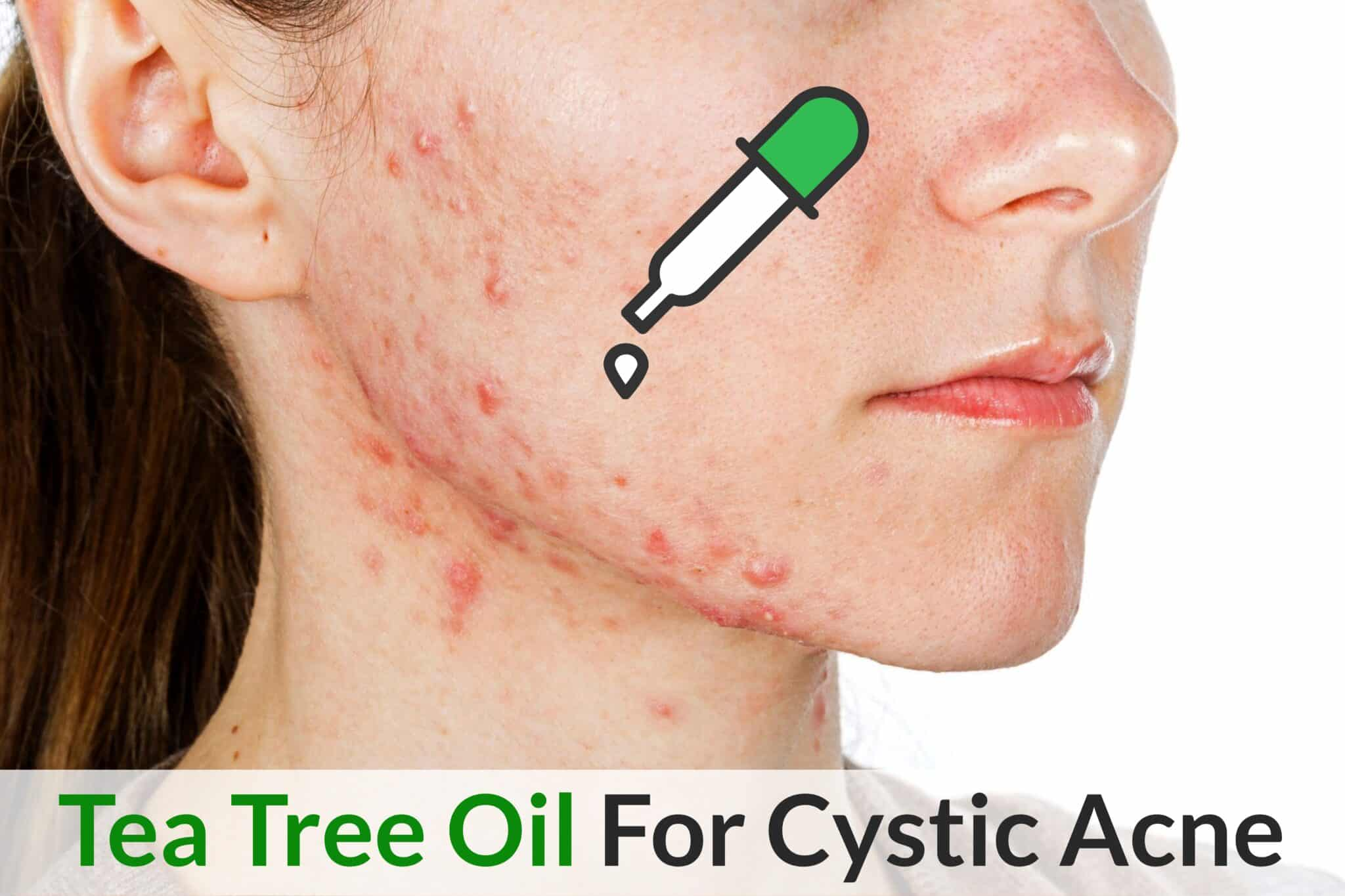 Best Ways To Use Tea Tree Oil For Maximum Relief In Cystic Acne Essential Oil Benefits