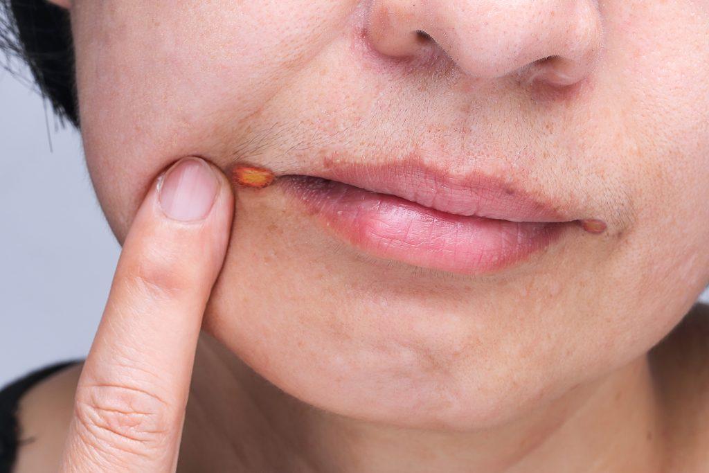 Pouvez-vous utiliser des huiles essentielles pour traiter les infections du visage et des lèvres sur les huiles essentielles &quot;width =&quot; 1024 &quot;height = &quot;683&quot; /&gt;</a></p><p> <a href=