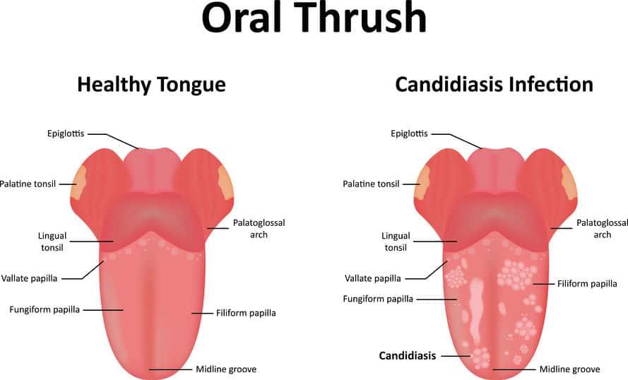 Können Sie ätherische Öle für Hefe-Infektion auf Gesicht und Lippen ätherisches Öl verwenden Vorteile &quot;Breite =&quot; 889 &quot;Höhe =&quot; 538 &quot;/&gt;</a></p><h5><strong> <em>Bei Erwachsenen und Kindern</em></strong> </h5><p>Im Frühstadium sind die Symptome mild, tatsächlich bleiben sie oft unbemerkt. Mundsoor-Symptome bei Kindern und Erwachsenen sind:</p><ul><li>Cremige weiße Läsionen an inneren Wangen, Zunge und zeitweise am Gaumen, Mandeln und Zahnfleisch</li><li>Erhabene Läsionen, die an Hüttenkäse erinnern</li><li>Rötung und Wundsein, die oft schwerwiegend genug sind Essen und Schlucken unerträglich</li><li>Blutung beim Schaben oder Reiben</li><li>Rötung und Rissbildung beim c Mundgeruch</li><li>Geschmacksverlust</li><li>Reizung, Schmerzen und Rötung unter Gebissen</li></ul><p>In einigen schweren Fällen, wenn die Mundsoorentzündung durch einen geschwächten Mund verursacht wird Immunsystem als Folge von <a href=