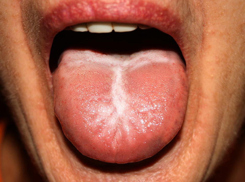 Können Sie ätherische Öle für Hefe-Infektion auf Gesicht und Lippen essentiellen Öl Vorteile &quot;Breite =&quot; 1024 &quot;Höhe =&quot; 763 &quot;/&gt;</a></p><p>Wie oben erwähnt, hat jeder Bakterien in ihrem Mund, Rachen und Das ist der Grund, warum die meisten Fälle von Infektionen der Hefe im Mund beginnen, bevor sie sich ausbreiten. Die Infektion beginnt von innen und breitet sich auf die Lippen aus, sobald die Hefe überwuchert ist. Hier sind die zwei Hauptinfektionen, die eine Pilzinfektion auf den Lippen verursachen.</p><h3> <span id=