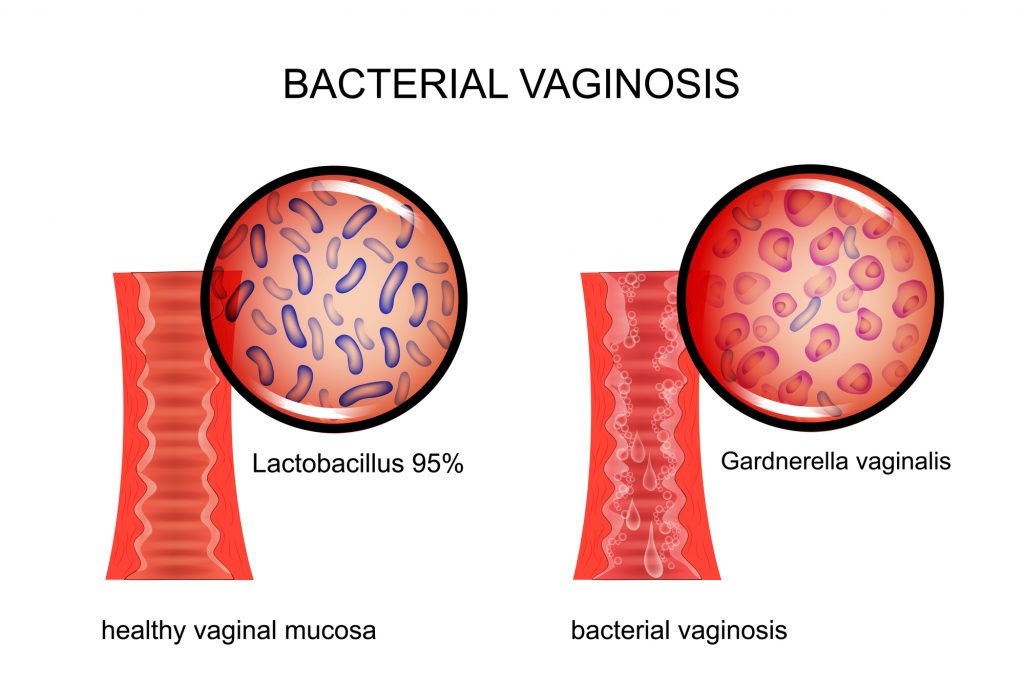 5 Ways To Use Essential Oils For Bacterial Vaginosis (Vaginal Bacteriosis) Essential Oil Benefits