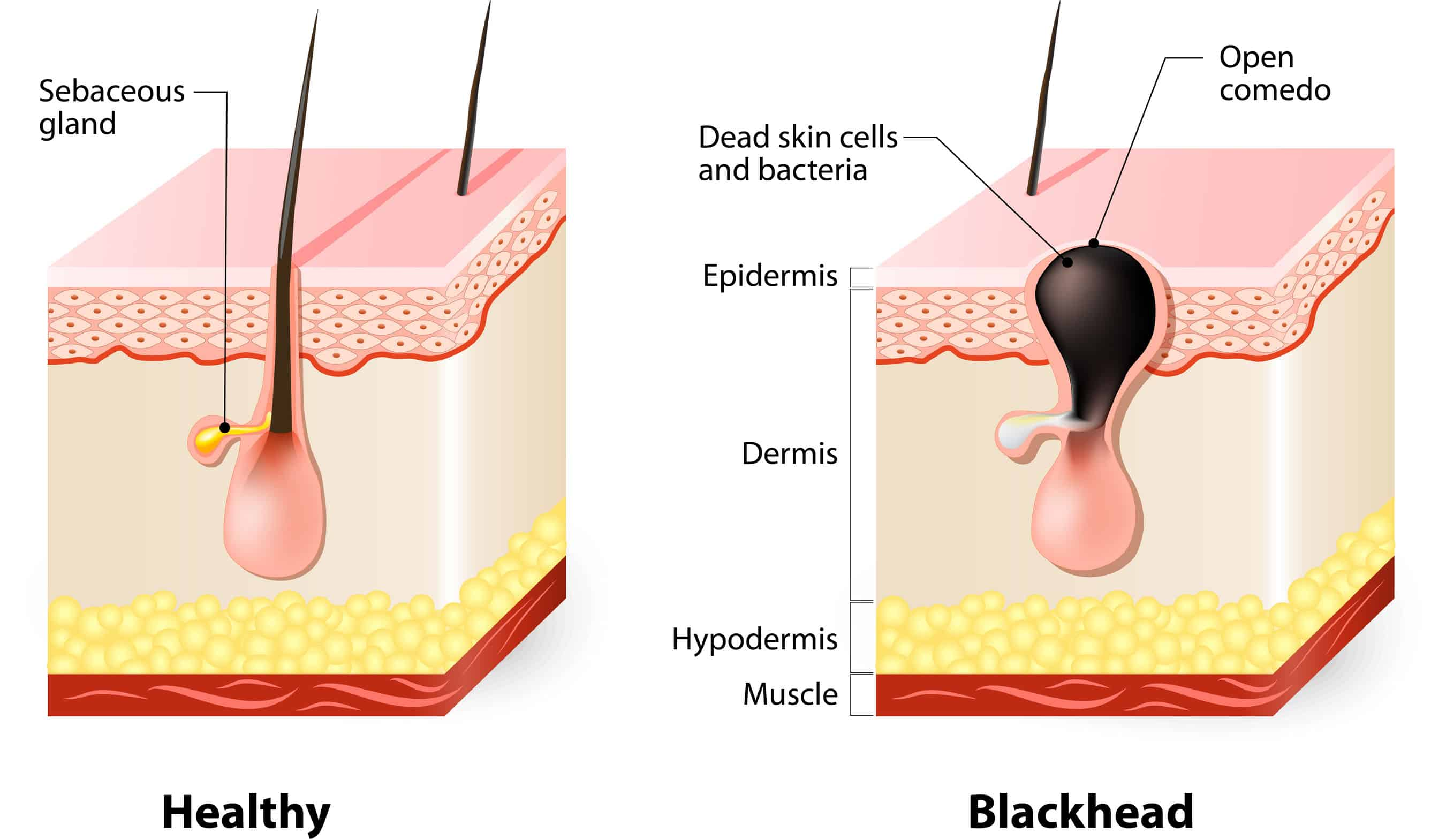 Essential Oils, Home Remedies & Diet To Get Rid Of Blackheads Essential Oil Benefits
