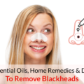 best essential oils for blackheads