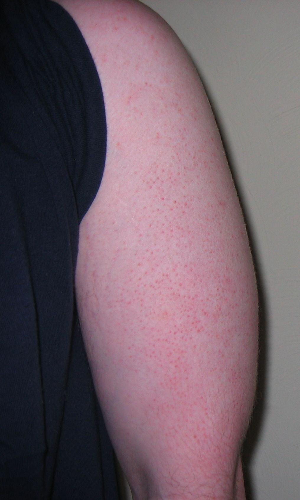 Best Essential Oils For Keratosis Pilaris: Fare Thee Well 'Chicken Skin' Essential Oil Benefits