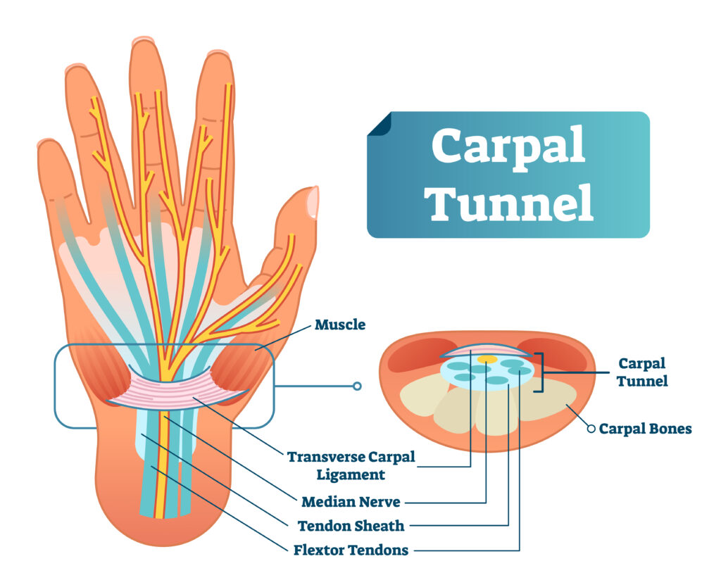 Essential Oils For Carpal Tunnel Syndrome: Are There Better Ways To Treat Carpal Tunnel Other Than Steroids And Surgery? Essential Oil Benefits