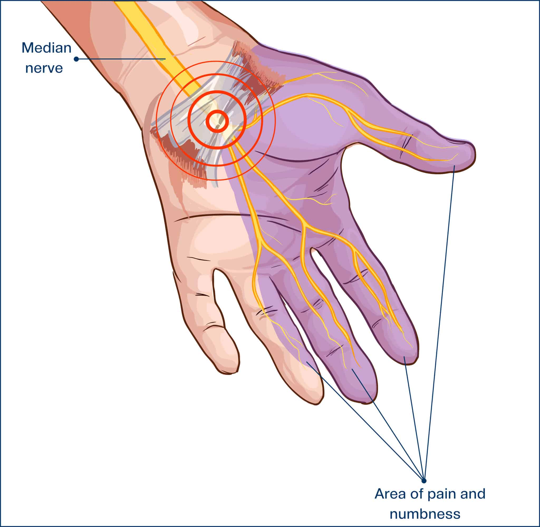 Essential Oils For Carpal Tunnel Syndrome: Are There Better Ways To Treat Carpal Tunnel Other Than Steroids And Surgery?