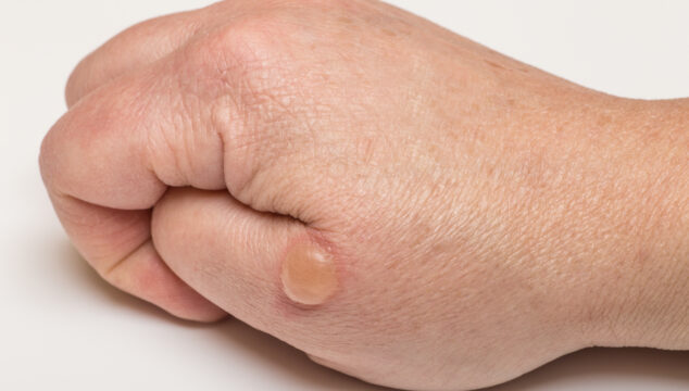 essential oils for blisters