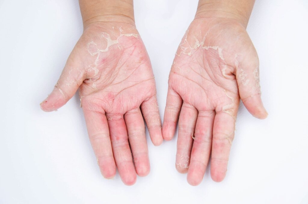 Essential Oils For Skin Infections: When Those Germs Don't Leave Your Skin Alone! Essential Oil Benefits